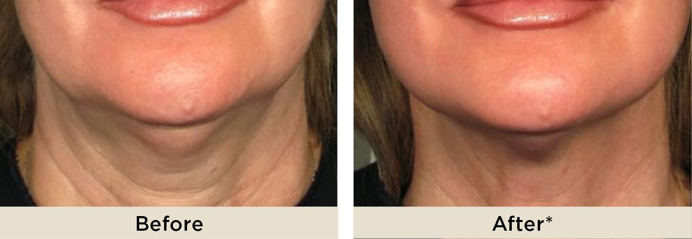 ULTRAcel | Non Surgical Skin Tightening Treatment | Dr Rita
