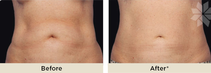 DrRakus_coolsculpting_beforeafter.jpg