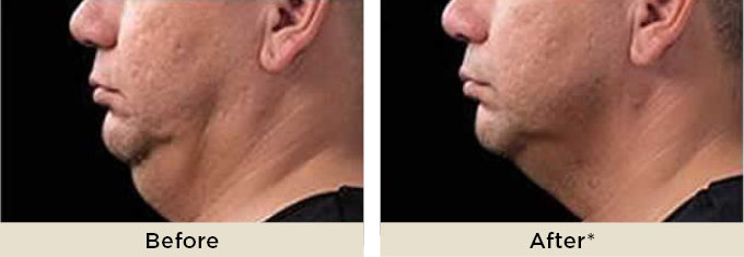 home_ritarakus_coolsculpting_chin2.jpg