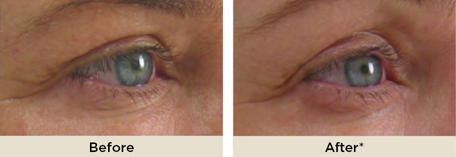 DrRakus_ultherapy_beforeafter11.jpg